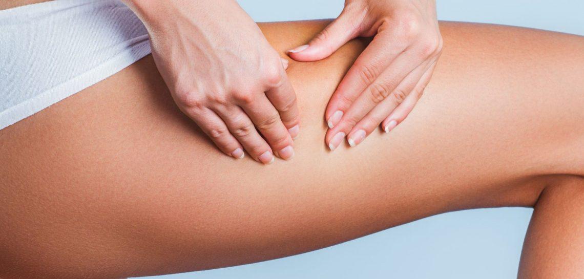 [Santé] Comment lutter contre la cellulite ?